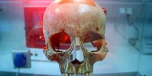 Cráneo de Mozart
